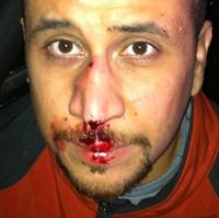 square-zimmerman-injuries